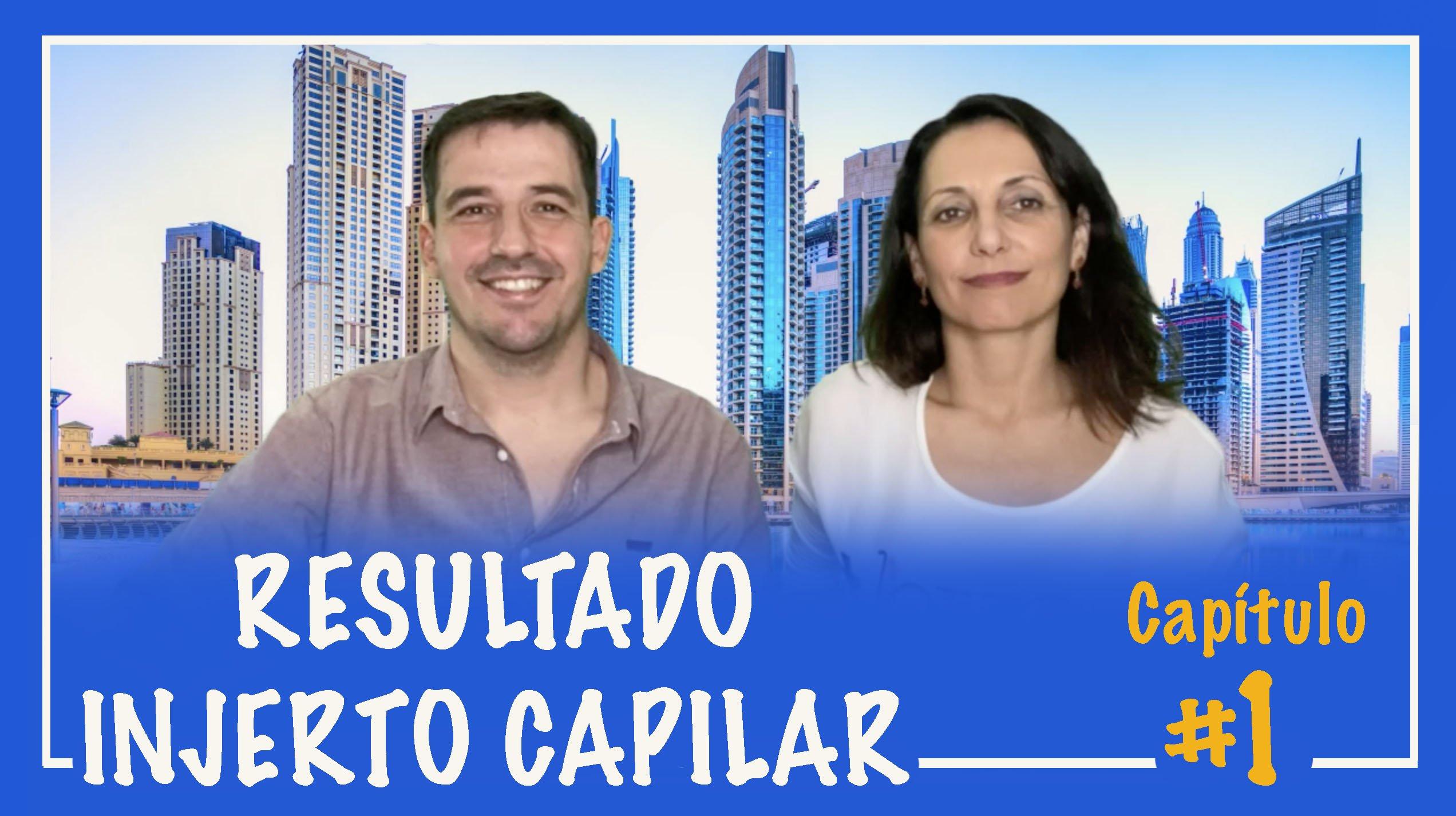 injerto-capilar-castellon-trasplante-pelo-implante-cabello-resultados