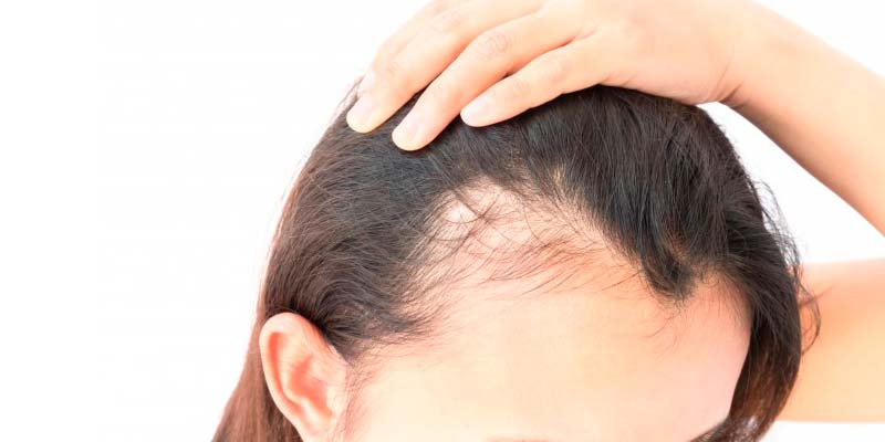 injerto-capilar-castellon-alopecia-androgenetica-femenina-caida-pelo-mujeres-10