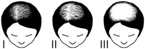 injerto-capilar-castellon-alopecia-androgenetica-femenina-caida-pelo-mujeres-3