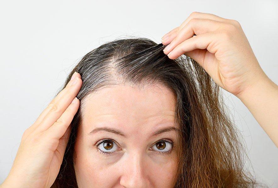 injerto-capilar-castellon-alopecia-androgenetica-femenina-caida-pelo-mujeres-4