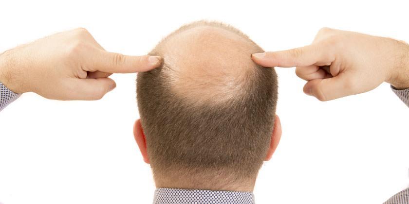 injerto-capilar-castellon-alopecia-androgenetica-femenina-caida-pelo-mujeres-6
